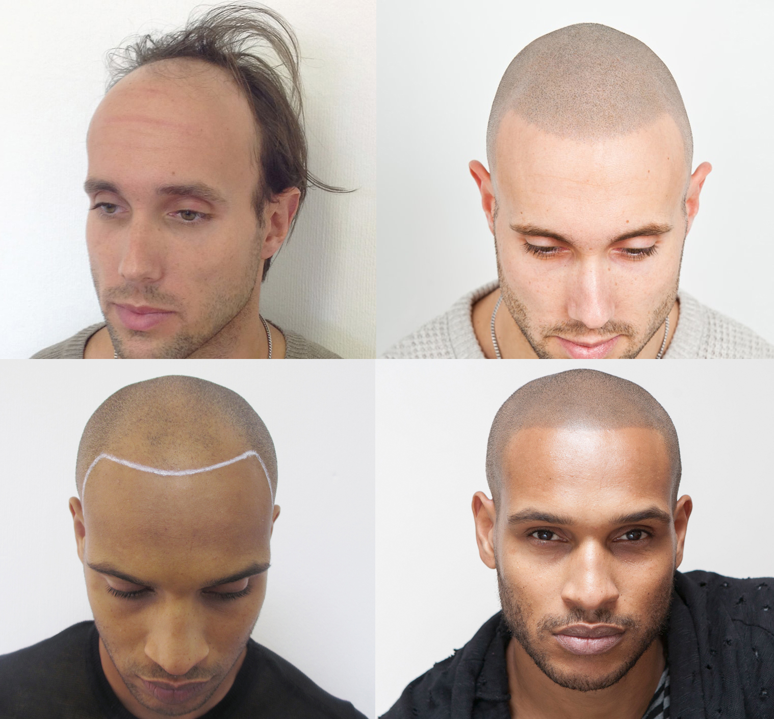 Skalp® the leading scalp micropigmentation provider since 2013, celebrates 5 years of service by offering Franchising worldwide.