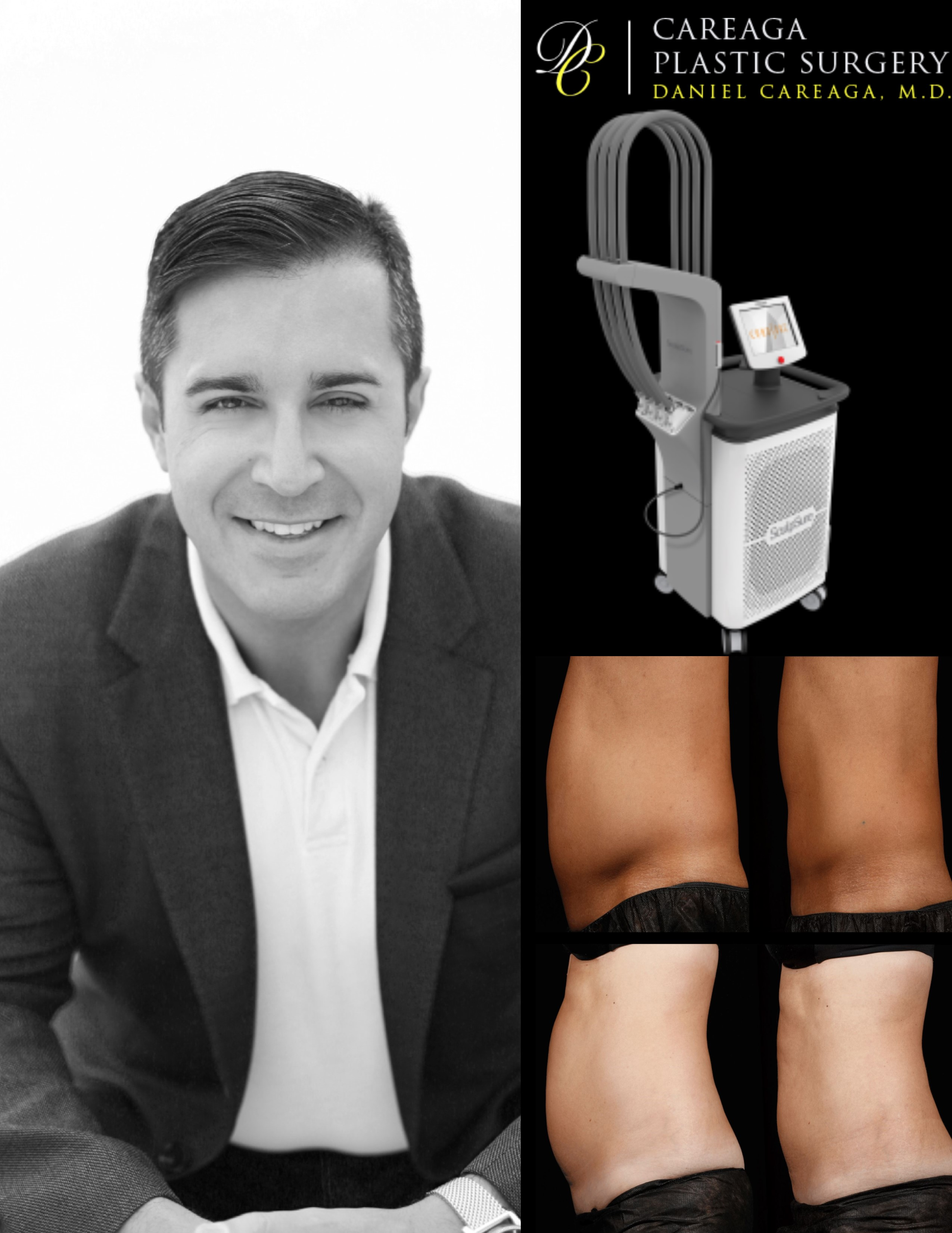 Careaga Plastic Surgery Introduces New Breakthrough Laser Technology For 25% Fat Loss In 25 Minutes